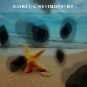 Diabetic Retinopathy Bundaberg, vision, Dr Jai Eye Centre
