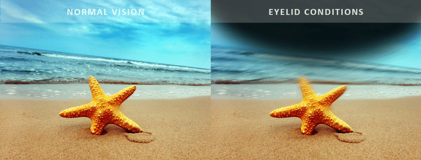 eyelid surgery bundaberg, vision, Dr Jai Eye Centre