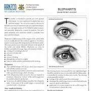Blepharitis, Dr Jai Eye Centre, Bundaberg