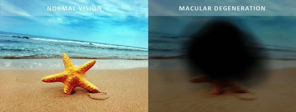 macular degeneration bundaberg, vision, Dr Jai Eye Centre